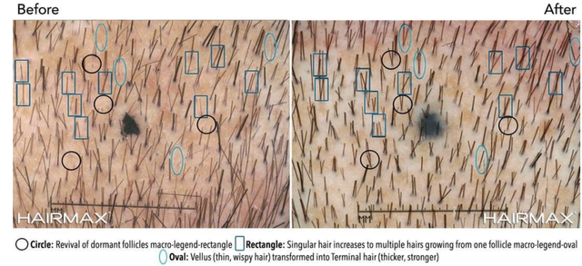 Out hairs of grow one follicle why multiple do Multiple hairs